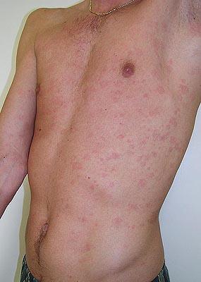 Genital rash - RightDiagnosis.com
