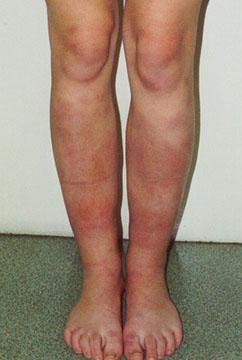 symtom propp i benet
